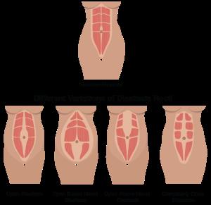 diastasis_recti_illustration3